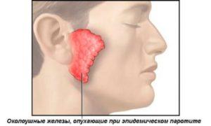Воспаление околоушной железы: все о эпидемическом паротите