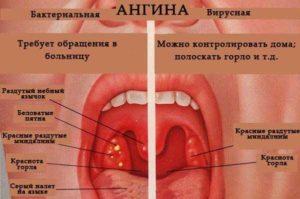 Чем лечить ангину у взрослого и когда нужны антибиотики?