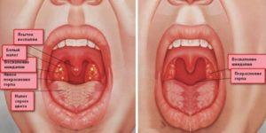 Советы родителям: как лечить красное горло у грудничка