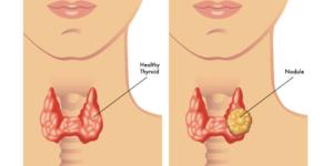 Что делать, если болит горло в области кадыка?