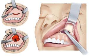 Киста в носу: симптоматика и способы лечения