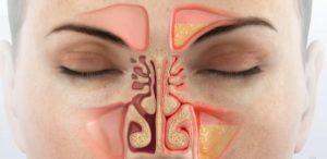 О чем свидетельствует и чем опасна желтая жидкость из носа?
