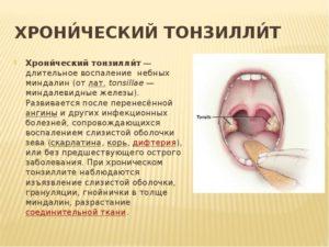 Чем лечить хронический тонзиллит: описание заболевания и способы лечения