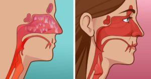 Постоянно забит нос: почему и что делать?