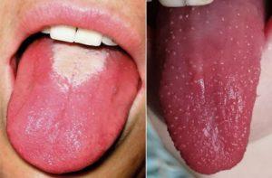 Скарлатина у детей: признаки и лечение недуга