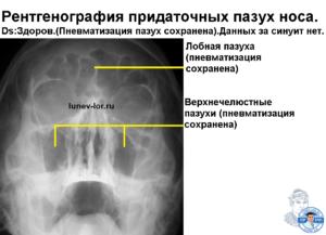 О чем может рассказать рентген носовых пазух?
