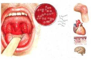 Как проявляется стафилококк в зеве и чем лечить инфекцию?