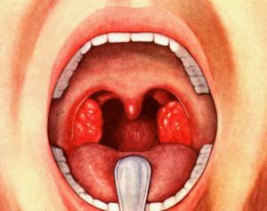 Стрептококк в горле: основные симптомы и способы лечения инфекции