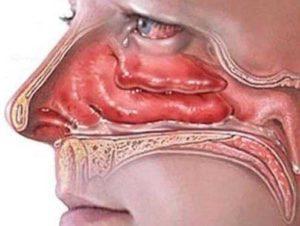 Признаки отека слизистой носа и лучшие противоотечные препараты