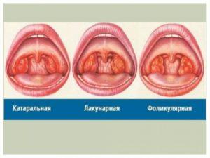 Бывает ли ангина без температуры: причины, виды и лечение