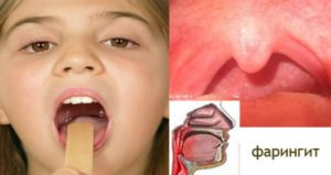 Симптомы фарингита у взрослых и особенности лечения заболевания глотки