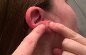 Прыщи на ушах: основные причины и способы их лечения