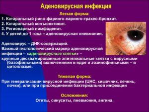 Как проявляется и лечится аденовирусная инфекция у детей?