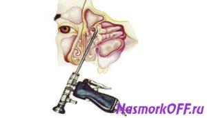 Воспаление носовых пазух: медикаментозное и хирургическое лечение