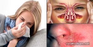 Болит внутри носа? Ищем причину