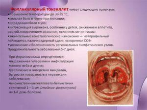 Симптомы фолликулярной ангины, а также медикаментозное, народное и хирургическое лечение