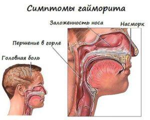 О чем свидетельствует постоянная заложенность носа без насморка?