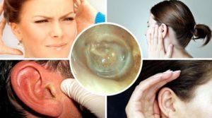 Отит среднего уха симптомы, методы лечения и возможные осложнения