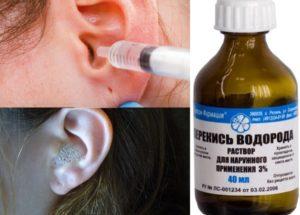 Как правильно почистить уши перекисью водорода