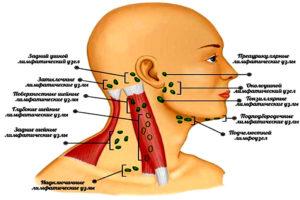 Воспалились лимфоузлы на шее: как вылечить?