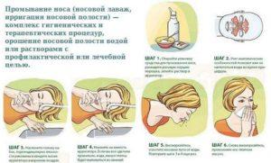 Как промывать нос соленой водой правила приготовления раствора и техника промывания
