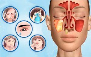 Гайморит что это такое: признаки и методы лечения воспаления гайморовых пазух