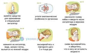 Раствор для промывания носа: рецепты и правила