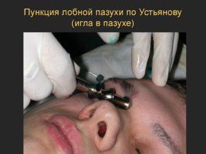 Трепанопункция лобной пазухи эффективный хирургический метод лечения фронтита