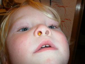 Что делать, если у ребенка заложен нос, а соплей нет