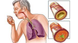 Почему возникает и чем опасен свист в легких?