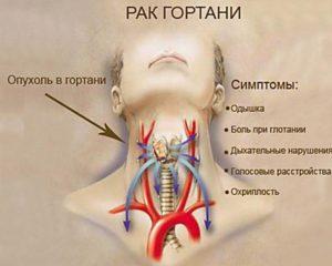 Боль в гортани: основные причины симптома