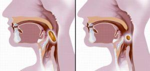 Причины дисфагии и что делать, если в горле застряла еда?