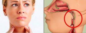 Как правильно избавится от слизи в горле: причины и лечение