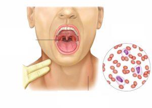 Как проявляется и чем опасна моноцитарная ангина?