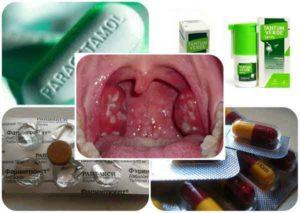 Эффективное медикаментозное и народное средство от горла