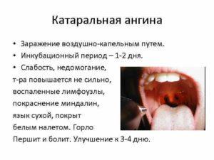 Как можно заразиться ангиной и как правильно лечить недуг