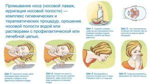 Что делать если заложило уши от насморка: причины и лечение
