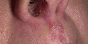 Что такое золотистый стафилококк и нужно ли его лечить?