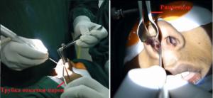 Септопластика лазером: назначение и процедура коррекции кривой перегородки носа
