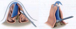 Носовая перегородка искривлена: основные симптомы и способы лечения