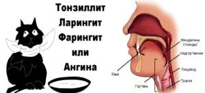 Причины возникновения боли в горле при глотании и методика лечения