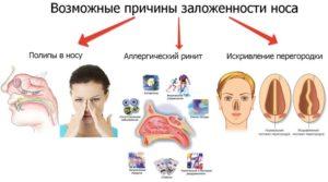 Насморка нет, но нос заложен что это значит и что делать?