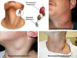 Гнойный лимфаденит причины воспаления лимфатических узлов и способы лечения