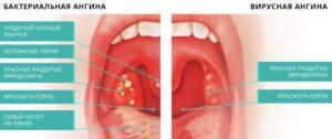 Признаки ангины и хороший антибиотик от недуга