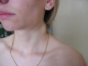 Опухли лимфоузлы на шее что делать?