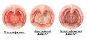 Признаки ларингита и эффективные препараты для лечения заболевания гортани