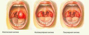 Какая бывает ангина? Формы заболевания, их симптомы и лечение