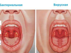 Катаральная ангина: лечение, симптомы и причины заболевания