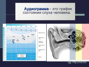 Что такое аудиометрия слуха и о чем она может рассказать?