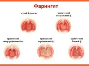 Фарингит: эффективное лечение в домашних условиях